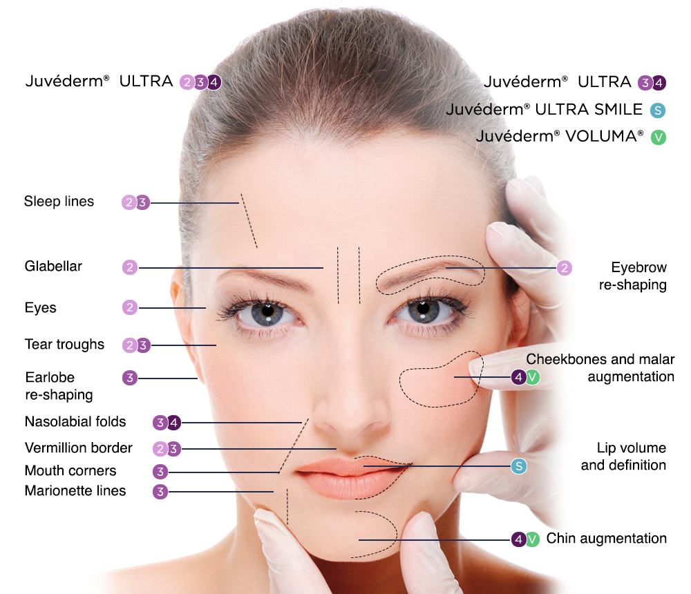 Juvederm Face Map
