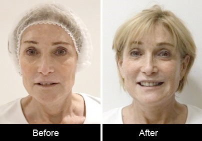 PDO Threadlift before and after Thread Lift