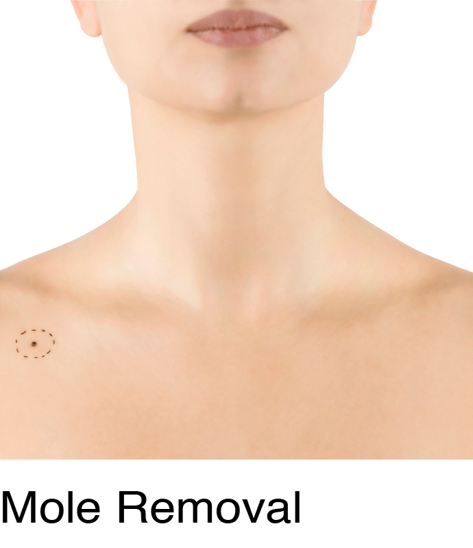 Mole And Skin Tag Removal At Chelsea Private Clinic And Belfast