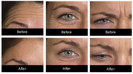 Botox at Cosmetech before and after