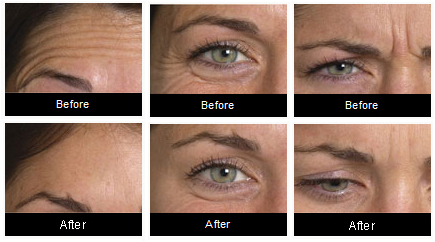 Anti-wrinkle injections before and after
