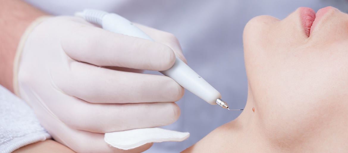mole-and-skin-tag-removal-cosmetech-maypole-clinic-holywood-belfast