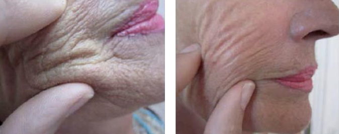 cheek before and after redensity 1